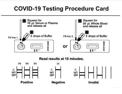 Rapid Test Cassette Acro 2019-nCoV IgG/IgM  (25 ks)  - 2